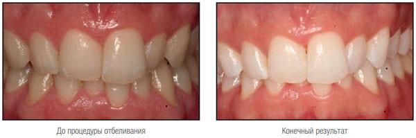 Стоматологическая клиника 2с стоматология на олимпийском проспекте в мытищах.